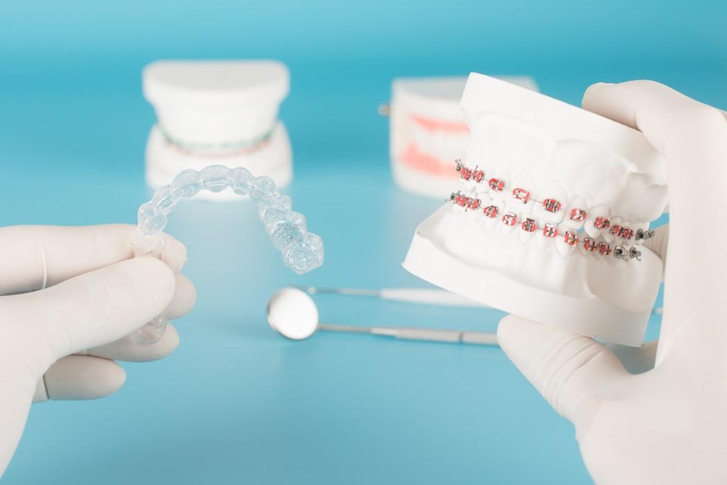 chois d'appareil dentaire | Orthodontie des Laurentides à St Jérôme