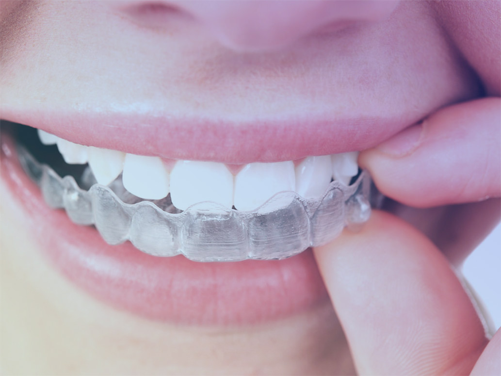 video-overlay-invisalign