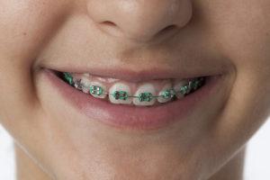 detail bagues dentaires métalliques elastiques | Orthodontie des Laurentides à St Jérôme