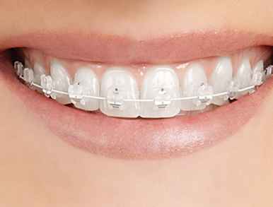 Sourire femme avec broches transparentes | Orthodontie des Laurentides à St Jérôme