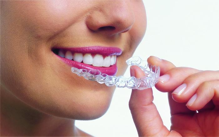 Appareil dentaire Invisalign | Orthodontie des Laurentides à St Jérôme