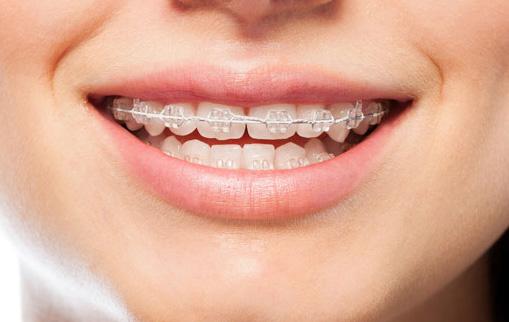 Sourire avec broches transparentes | Orthodontie des Laurentides à St Jérôme