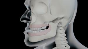 Malocclusion | Orthodontie des Laurentides à St Jérôme